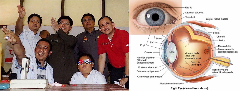 Jaga Mata Kita Sebelum Sakit